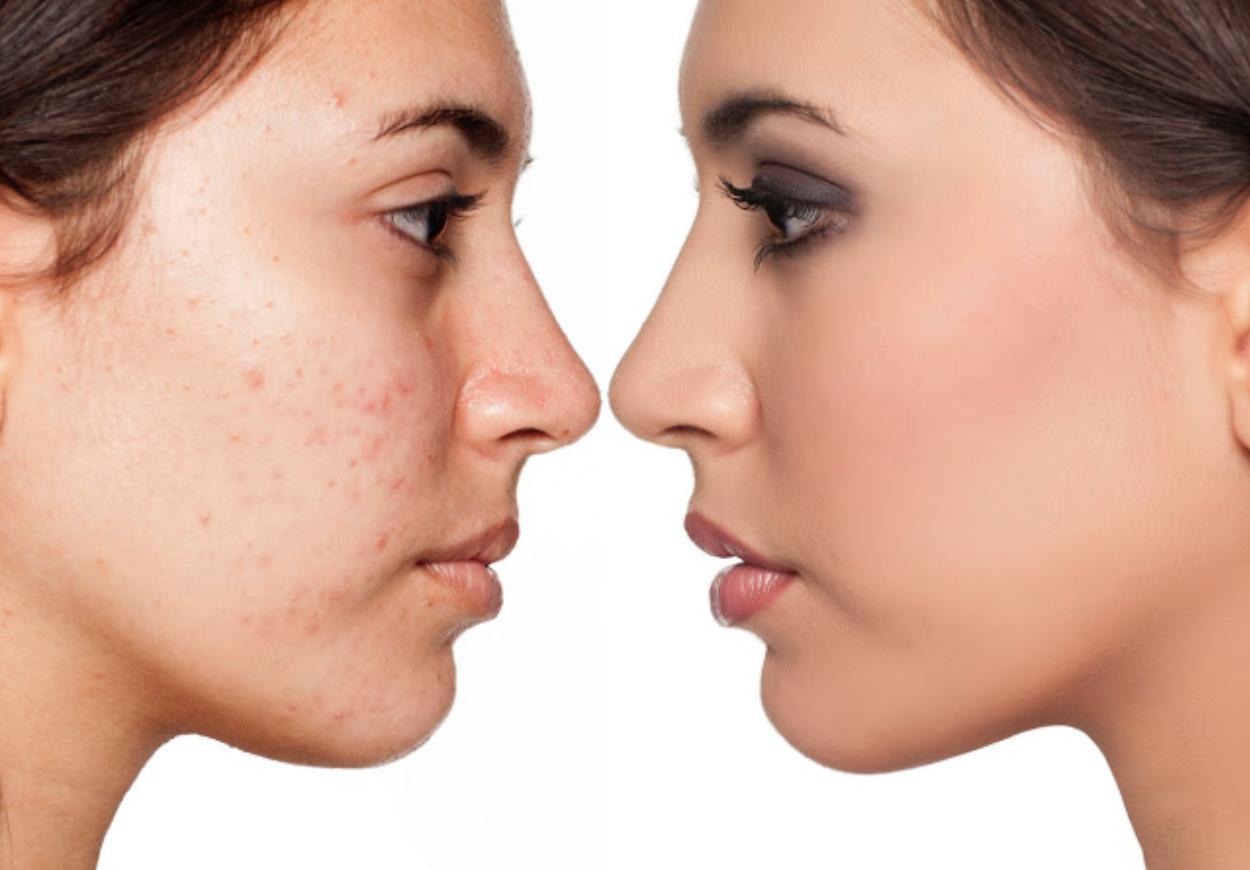 Waarom een HydraFacialbehandeling ideaal is bij acné.