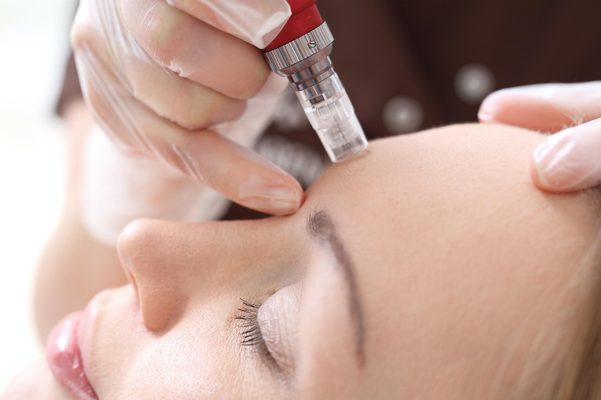 Microneedling: wat doet het voor je huid?