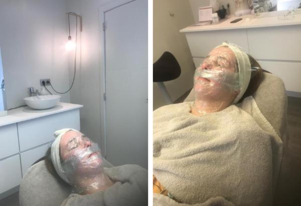 Environ Cool Peel behandeling