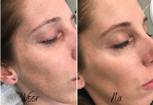 Voor en na na PCA peeling
